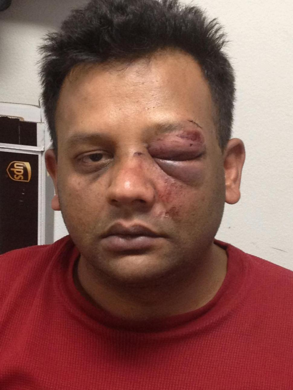 Hate-filled taxi passenger smacks driver in face with skateboard after asking his nationality